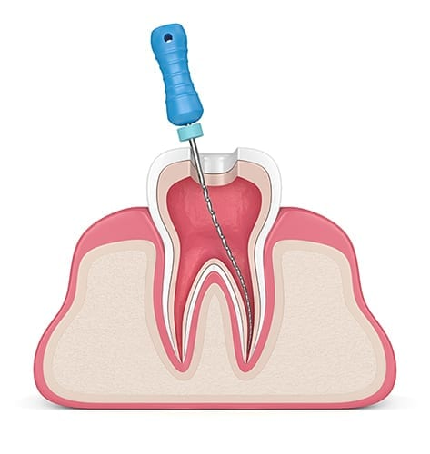 Mechanical preparation root canal therapy