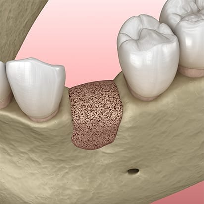 Bone grafting procedure - 4