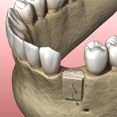 Bone grafting procedure - 6