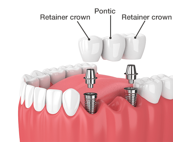 Implant supported dental bridge
