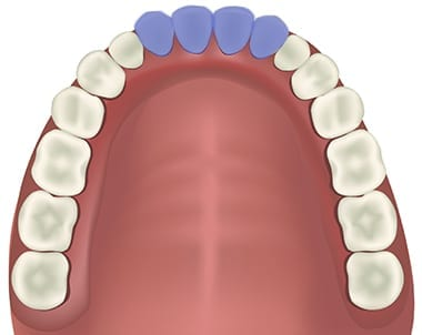 Incisors position